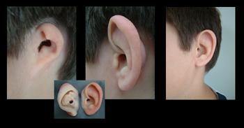 پروتز زیبایی گوش 3