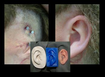 پروتز زیبایی گوش 4