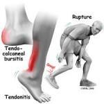 achilles_tendonitis (1)