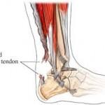 achilles_tendonitis (2)