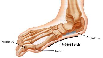 flat_feet