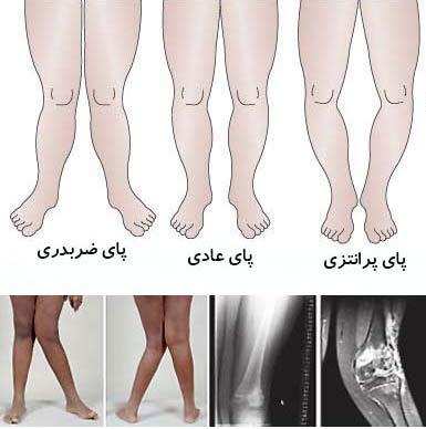 Bowed legs and cross1 - علل ایجاد کننده زانوی پرانتزی