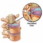 herniat disc