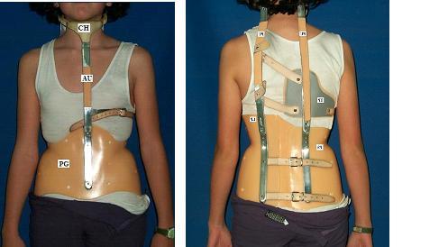 The Milwaukee Brace 2 - بریس میلواکی: پوشیدن ومراقبت انواع ارتز میلواکی (بریس اسکولیوز کمر)