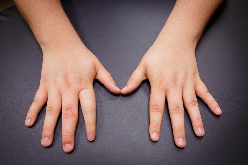 پروتز جزئی دست غیرفعال یا پسیو