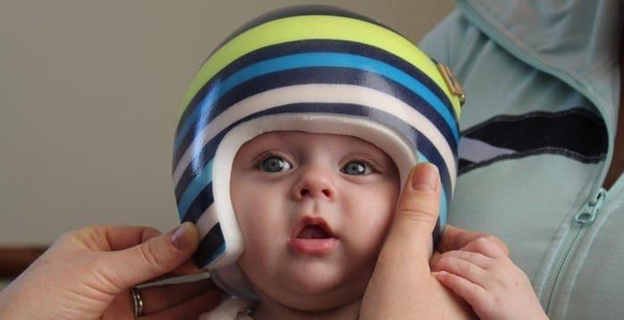 کاربرد و مزایای کلاه قالب سر برای بدشکلی سر نوزاد