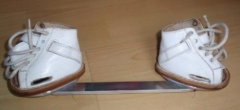 استفاده از بریس برای درمان پا چنبری