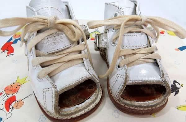 کاربردهای کفش طبی کودکان min - کفش طبی کودکان: درمان اختلالات کف و مچ پای بچه ها با کفش